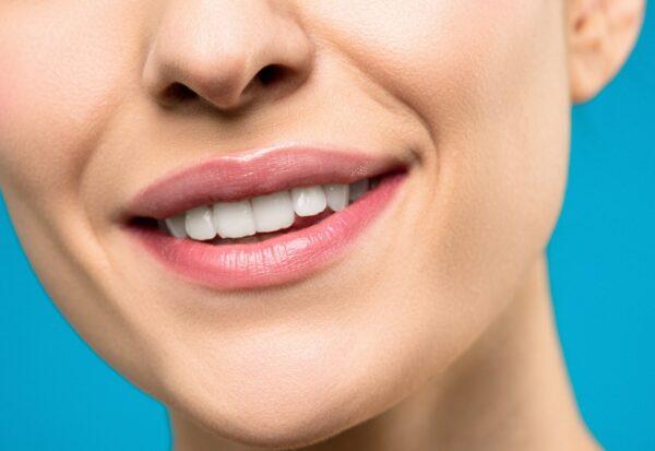 Ile kosztuje aparat na zęby i od czego zależy jego cena?