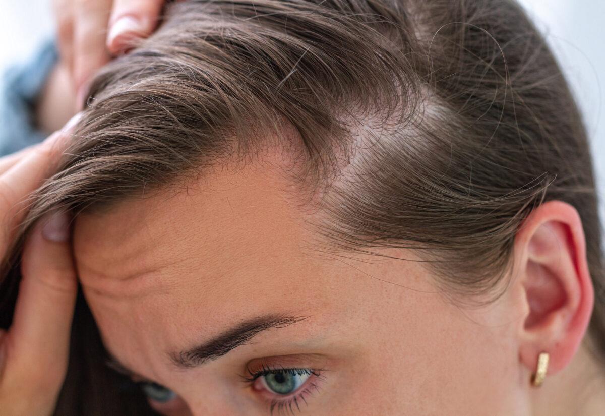 Sposoby na łysienie